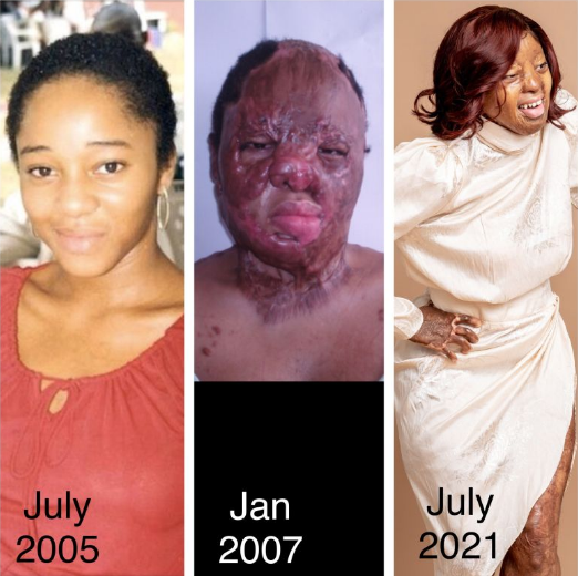 Kechi Okwuchi before and after